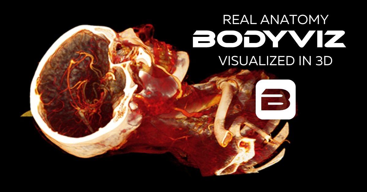 Cerebral Vessels of the skull with BodyViz Anatomy